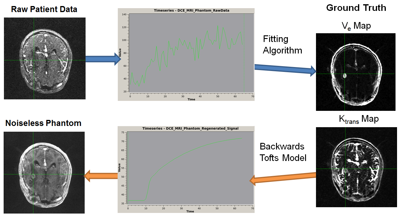 A schematic is shown. An image of a brain with signal noise labeled 'Raw Patient Data' is connected via an arrow to a chart of a noisy time series. That image is connected to two more ktrans and ve brain images labeled 'Ground Truth', with the caption 'Fitting Algorithm.' Those images are connected back to another time series diagram with the caption 'Backward Tofts Algorithm.' This time series diagram is then linked to an noiseless brain labeled 'Noiseless Phantom'